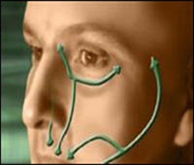 лечение лицевого нерва народными средствами.